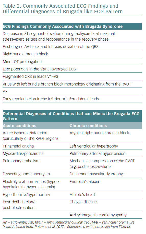 Commonly Associated ECG Findings and Differential Diagnoses