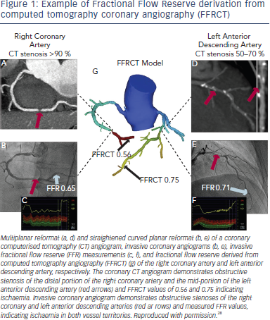 Fractional Flow Reserve derivation from computed tomography coronary angiography