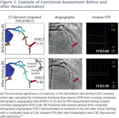 Example of Functional Assessment Before and After Revascularisation