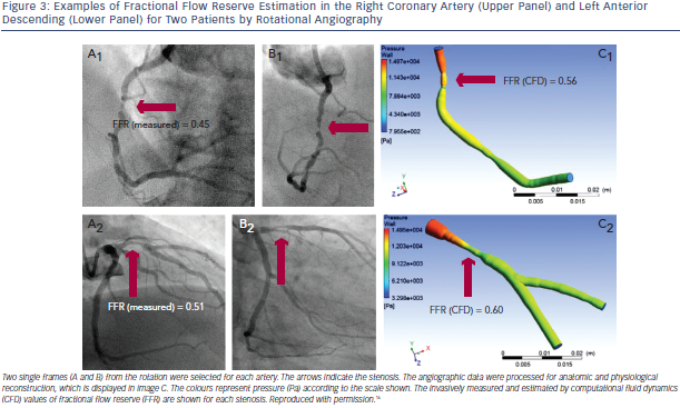 FFR Estimation in the Right Coronary Artery and Left Anterior Descending
