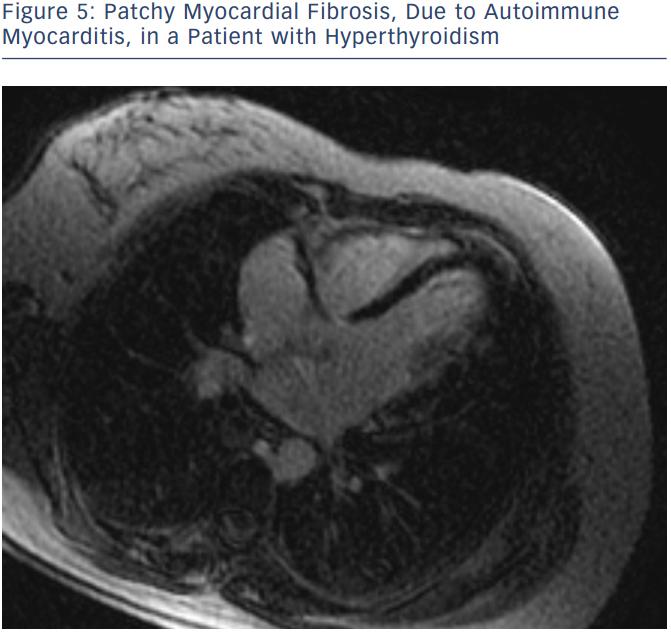 Patchy Myocardial Fibrosis, Due to Autoimmune Myocarditis