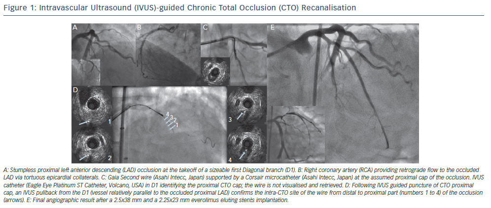 Intravascular Ultrasound (IVUS)- guided CTO Recanalisation