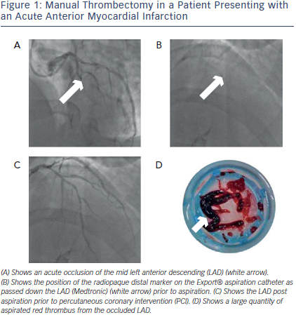Manual Thrombectomy in a Patient  with an Acute Anterior Myocardial Infarction