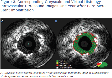 Intravascular Ultrasound Images One Year After Bare Metal Stent Implantation