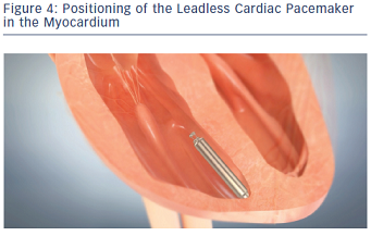 Positioning of the Leadless Cardiac Pacemaker in the Myocardium