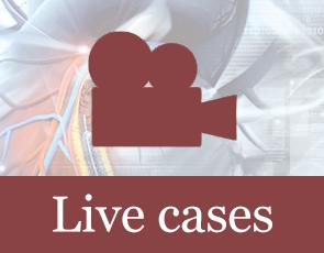 Radcliffe Vascular Live Cases