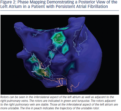 Phase Mapping Demonstrating a Posterior View of Left Atrium