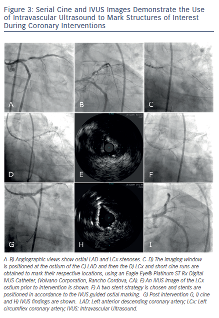 Serial Cine and IVUS Images Demonstrate the Use of Intravascular Ultrasound