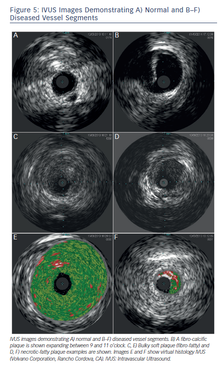 IVUS Images Demonstrating A) Normal and B–F) Diseased Vessel Segments