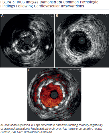 IVUS Images Demonstrate Common Pathologic Findings