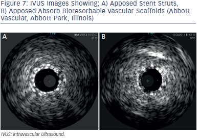 A) Apposed Stent Struts, B) Apposed Absorb Bioresorbable Vascular Scaffolds