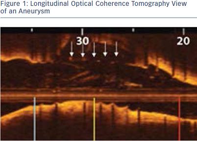 Longitudinal Optical Coherence Tomography View of an Aneurysm