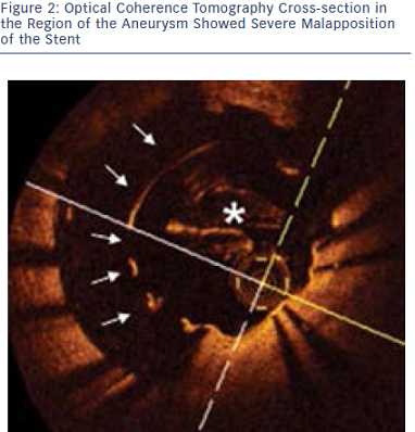 Optical Coherence Tomography Cross-section in the Region of the Aneurysm
