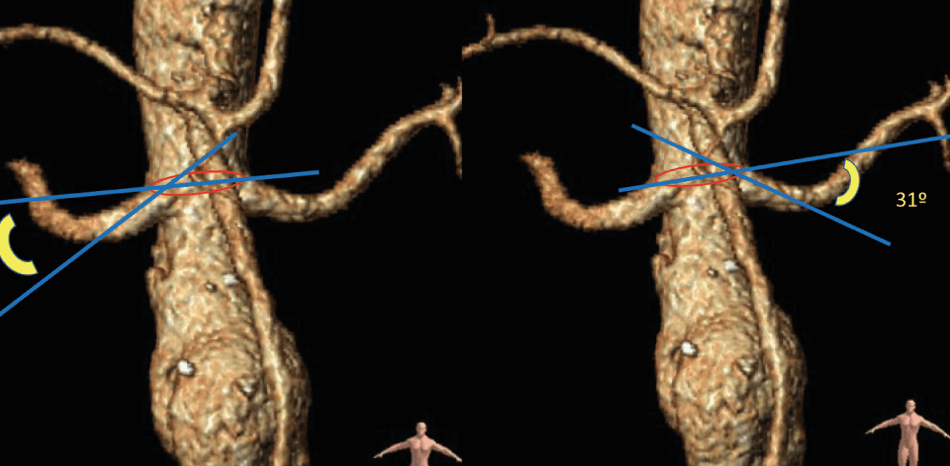 Endovascular Rescue of Simultaneous Renal Stent Thrombosis: Case Report