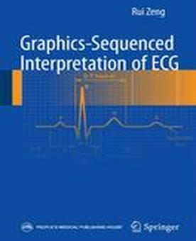 Graphics-Sequenced Interpretation of ECG: 2016