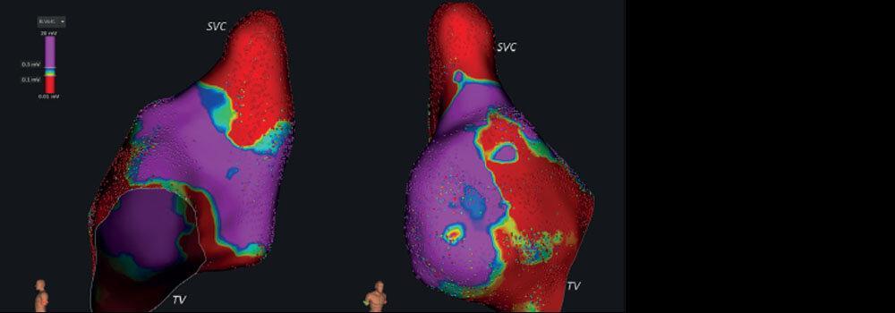 Atrial Arrhythmias in Pulmonary Hypertension: Pathogenesis, Prognosis and Management