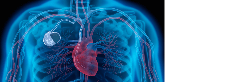 Preventive Ventricular Tachycardia Ablation In Patients With Ischaemic Cardiomyopathy