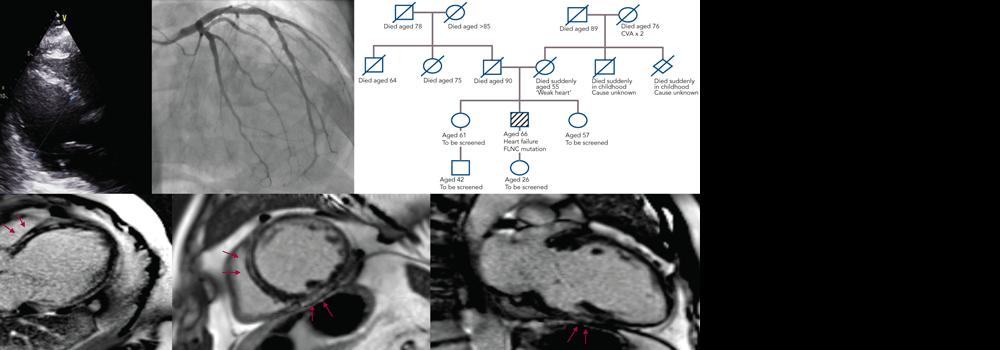 Arrhythmogenic Cardiomyopathy: A Disease Or Merely A Phenotype?