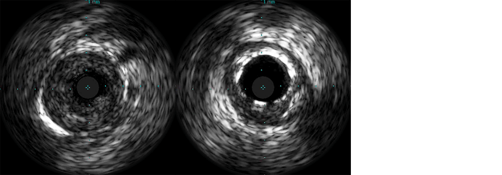 Use of intravascular ultrasound (IVUS) in ambiguous angiograms