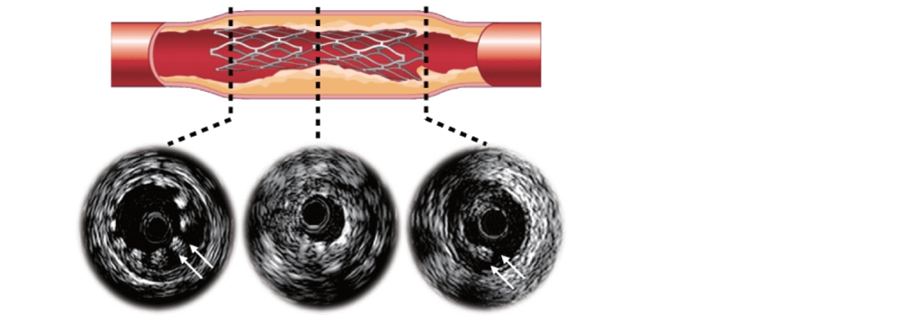 Intravascular Ultrasound-guided Management of Diffuse Stenosis