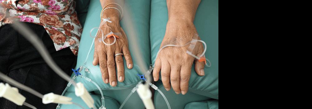 Cardio-Oncology: A Focus On Cardiotoxicity