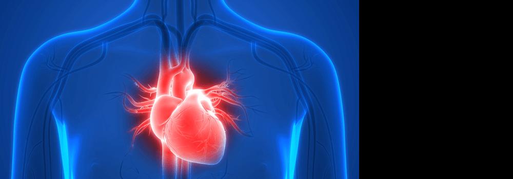 Arrhythmogenic Inflammatory Cardiomyopathy