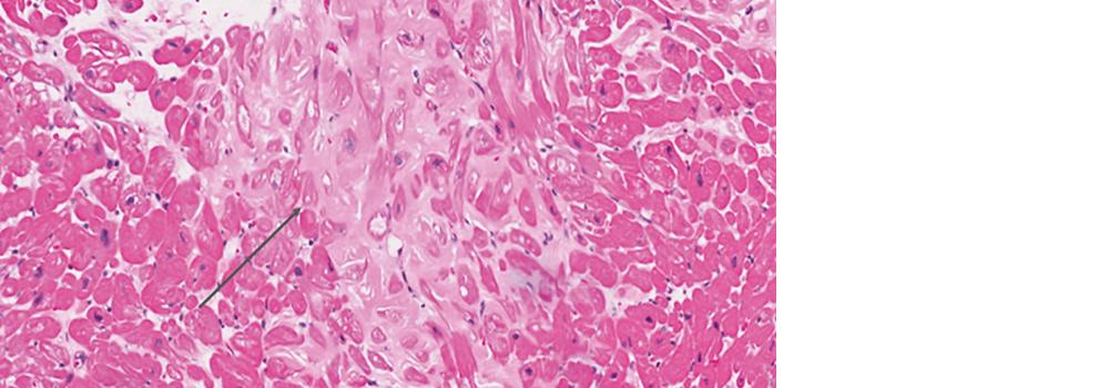 Amyloid Heart Disease