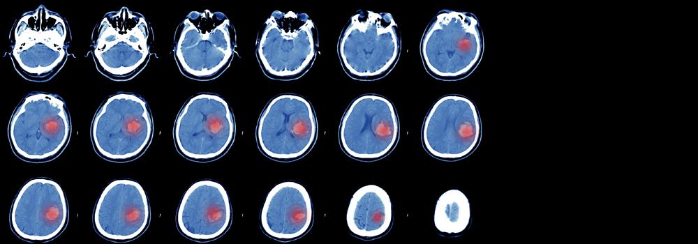 Cerebral Embolic Protection In TAVI: Friend Or Foe
