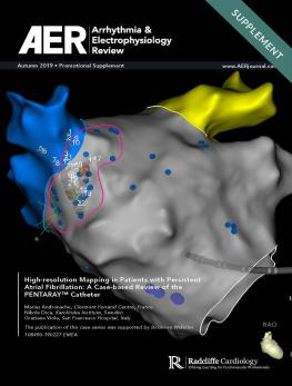 High-resolution Mapping in Patients with Persistent Atrial Fibrillation