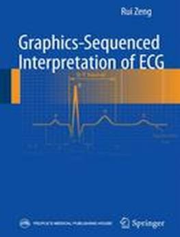 Graphics-Sequenced Interpretation of ECG: 2016