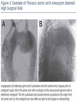 Thoracic Aortic Arch Aneurysm Deemed High SUgical Risk