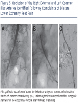 Occlusion Of The Right External And Left Common Iliac Arteries