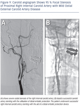 Mild Ostial External Carotid Artery Disease