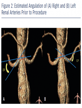 Estimated Angulation of (A) Right and (B) Left Renal Arteries Prior to Procedure