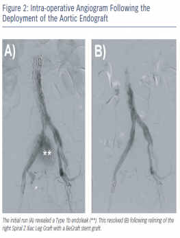 Intra-operative Angiogram Following the Deployment of the Aortic Endograft
