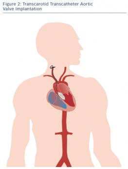 Transcarotid Transcatheter Aortic Valve Implantation