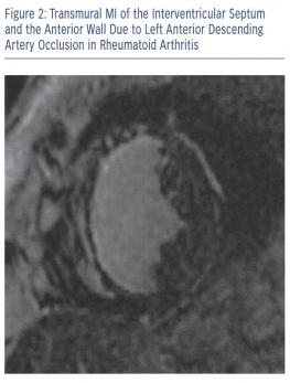 Transmural MI of the Interventricular Septum