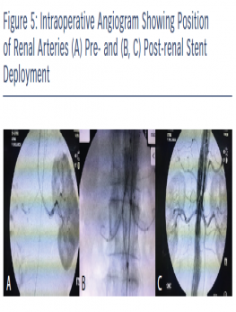 Intraoperative Angiogram Showing Position of Renal Arteries (A) Pre- and (B, C) Post-renal Stent Deployment