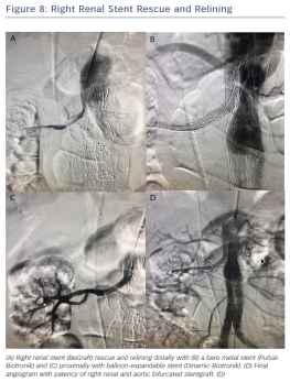Right Renal Stent Rescue and Relining