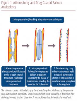 Atherectomy and Drug-Coated Balloon Angioplasty