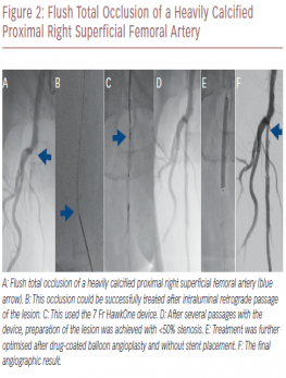 Flush Total Occlusion of a Heavily Calcified Proximal Right Superficial Femoral