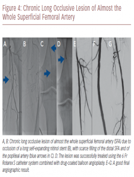Chronic Long Occlusive Lesion of Almost the Whole Superficial Femoral