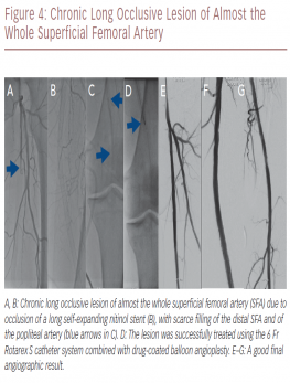Chronic Long Occlusive Lesion of Almost the Whole Superficial Femoral Artery