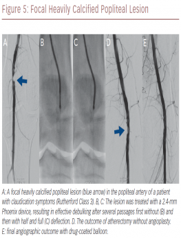 Focal Heavily Calcified Popliteal Lesion