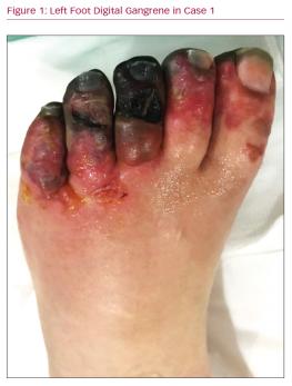 Left Foot Digital Gangrene in Case 1
