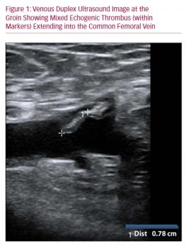 Figure 1: Venous Duplex Ultrasound Image