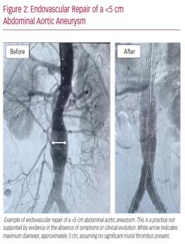 Endovascular Repair of a <5 cm Abdominal Aortic Aneurysm