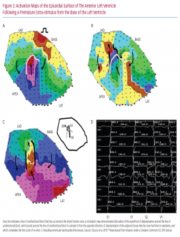 Activation Maps of the Epicardial Surface