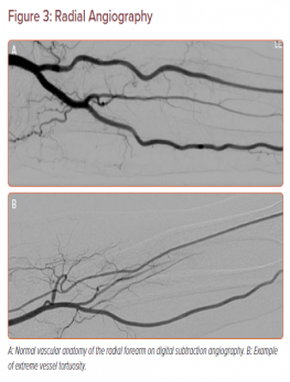 Radial Angiography