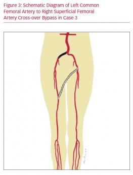 Schematic Diagram of Left Common Femoral Artery